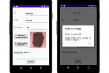 Aplikacja mobilna do obrazowania i klasyfikacji zmian skórnych - najlepszy projekt grupowy na WETI